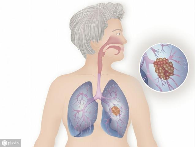 左下肺軟組織影,肺部小結節,是否應積極做手術切除?聽聽醫生怎么說