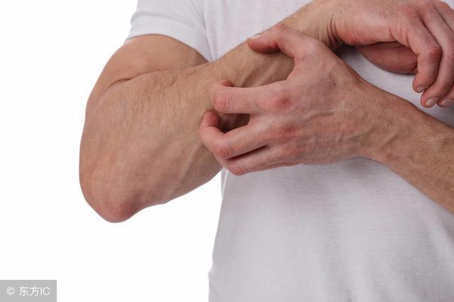 皮疹的症状有哪些?有5类,不同类型的症状也有所不同