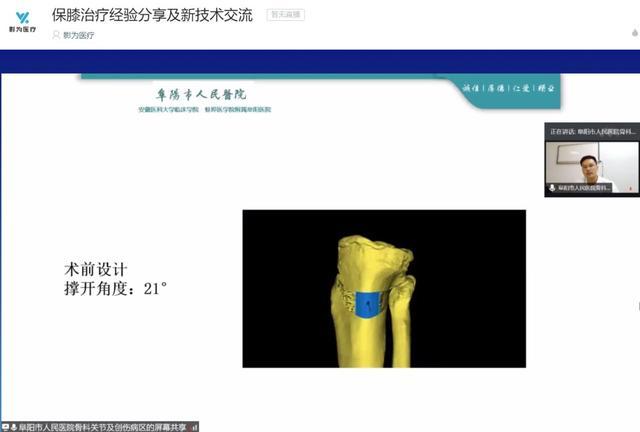 直播回顾 保膝治疗经验分享及新技术交流