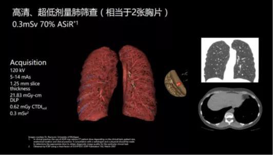 陆道培医院石玉铸主任:影像科医生是临床诊断的「侦察兵」