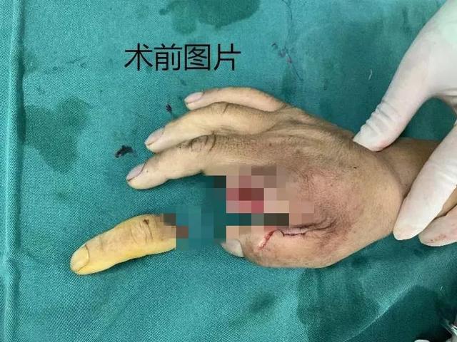 蓟州区人民医院成功实施断指再植手术,手指奇迹「复活」