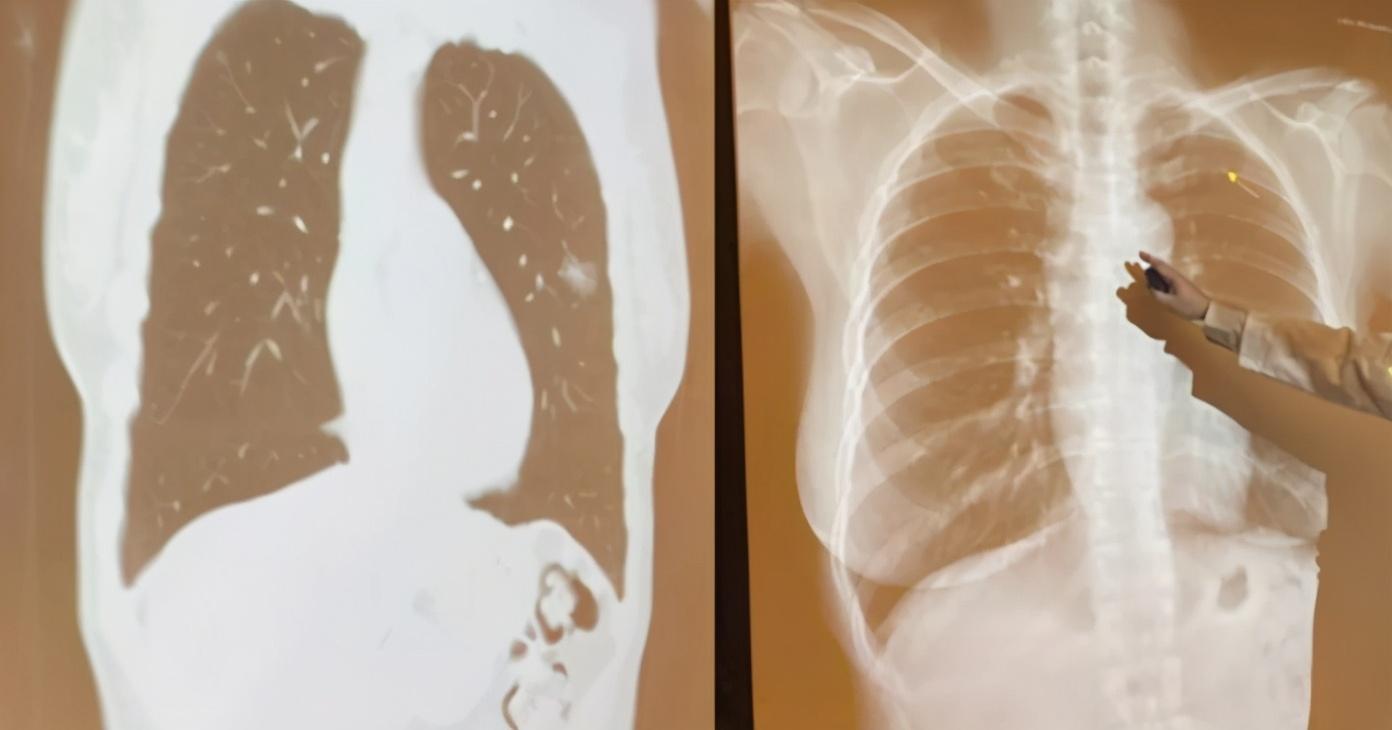 50岁女不抽烟不喝酒 肺部竟发现10颗肺癌结节