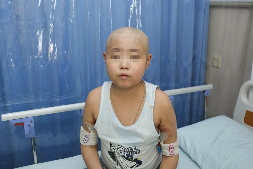 陆道培医院 CD7CAR-T 治疗急性 T 淋巴细胞白血病取得三连胜