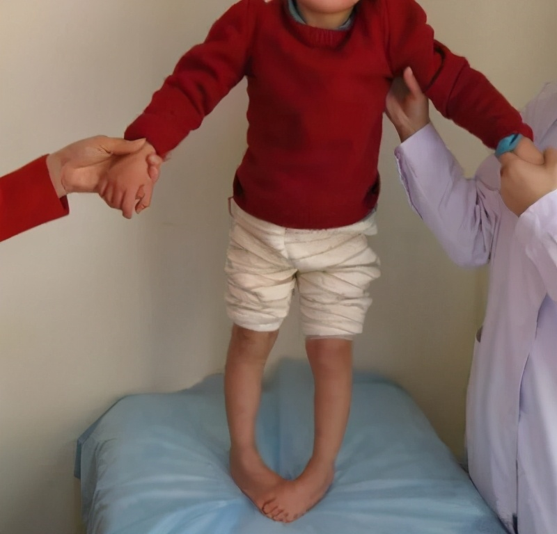 儿童脑瘫康复训练