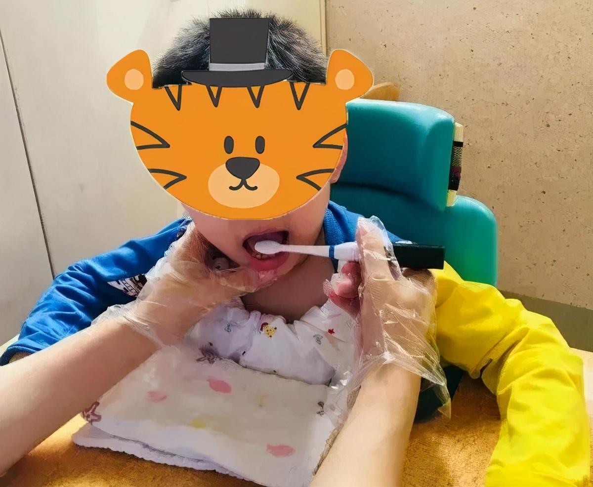 脑瘫儿童ST语言训练